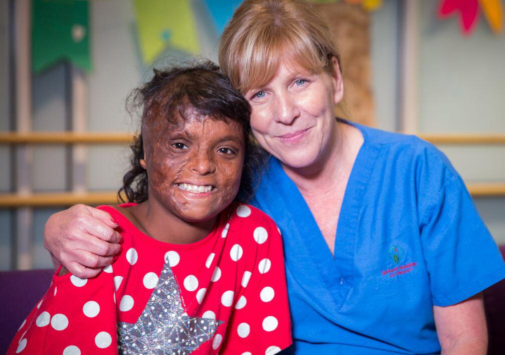 paciente con quemaduras y un enfermero