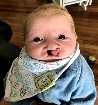 Beau with cleft lip as baby