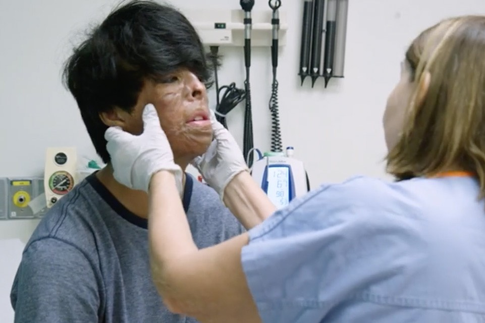 Burn patient being examined
